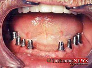 implant 27f