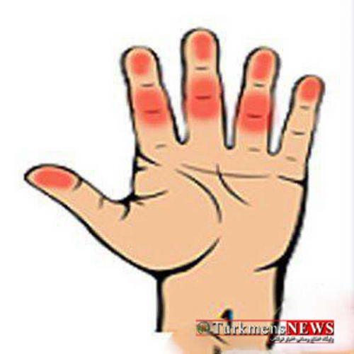 Hand 4 24 F