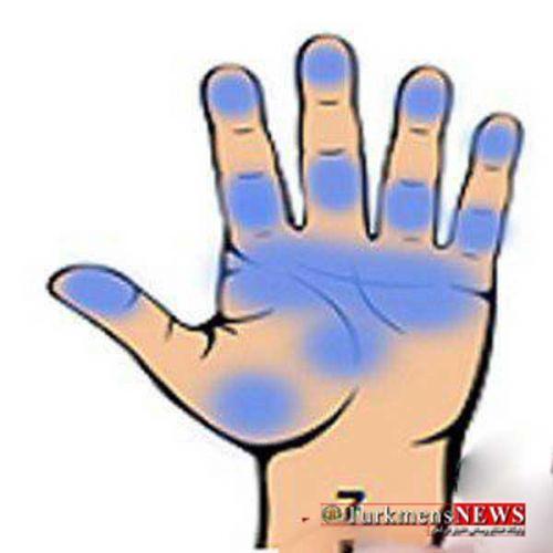 Hand 7 24 F